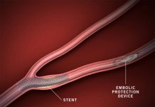 Embolic Protection Devices Market