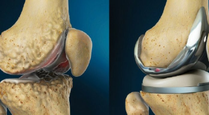 Reconstructive Joint Replacements Market Report